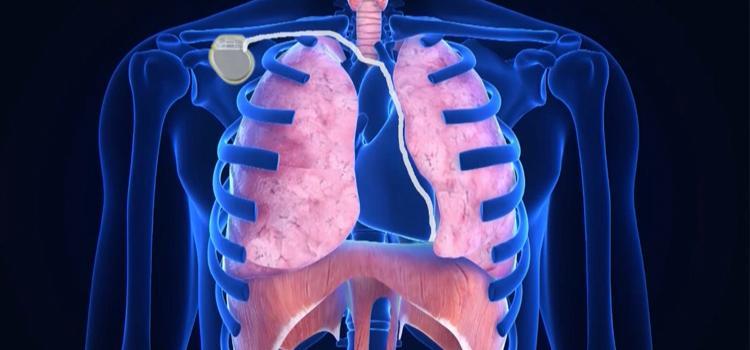Groundbreaking Sleep Apnea Implant Approved By Fda Sleepzoo