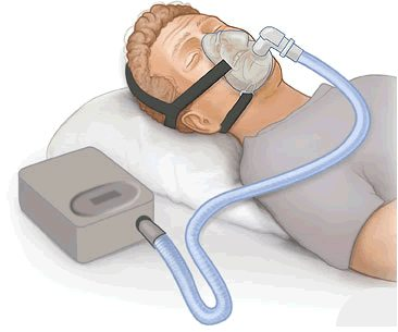 What is CPAP