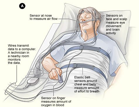 At home sleep apnea test