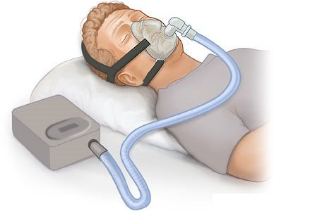How Much Does a CPAP Machine Cost? CPAP Machine Prices & More
